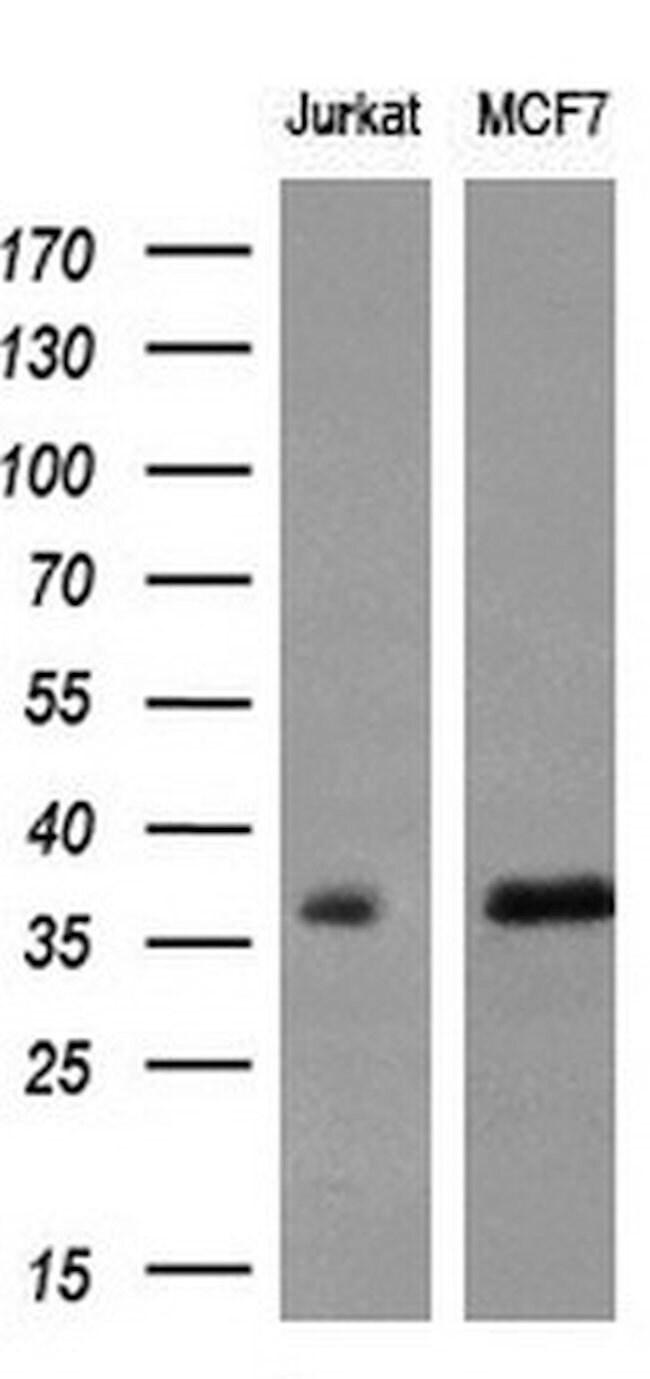 MYD88 Mouse anti-Human, Clone: OTI1A10, liquid, TrueMAB  100 µL; Unconjugated