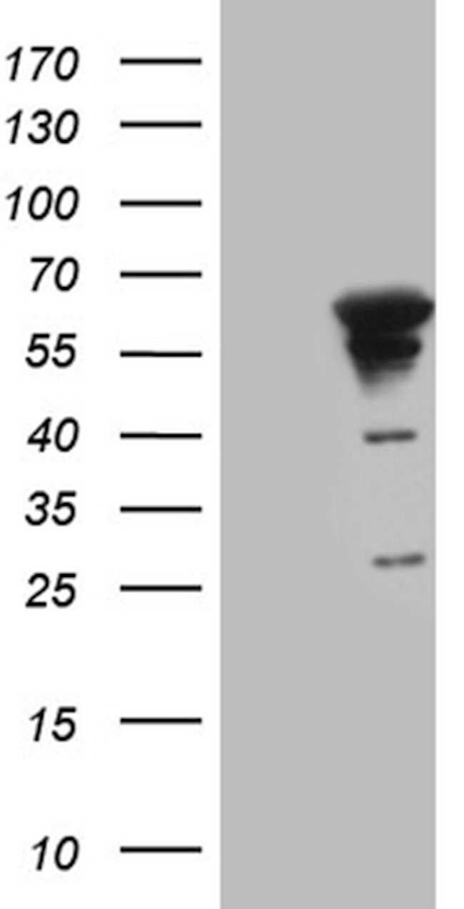 MYOT Mouse anti-Human, Clone: OTI10A11, lyophilized, TrueMAB  100 µg;