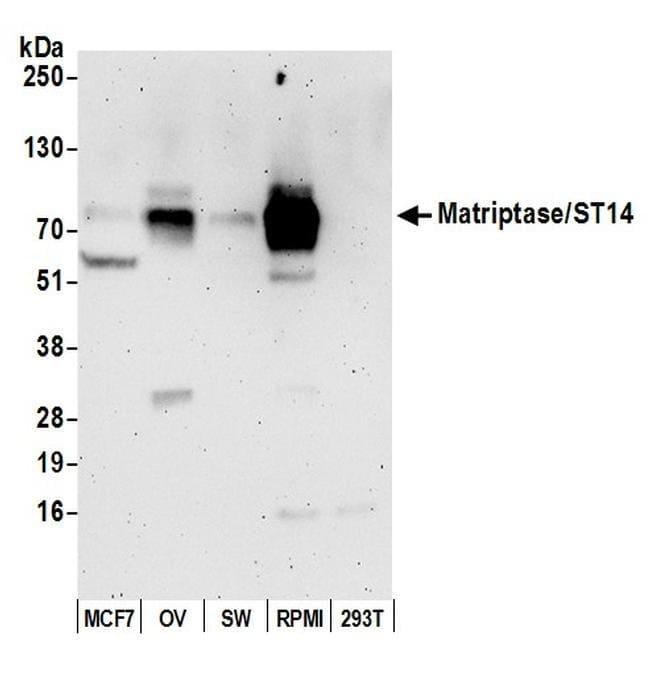 Matriptase/ST14, Polyclonal, Bethyl Laboratories  20 µL; Unconjugated