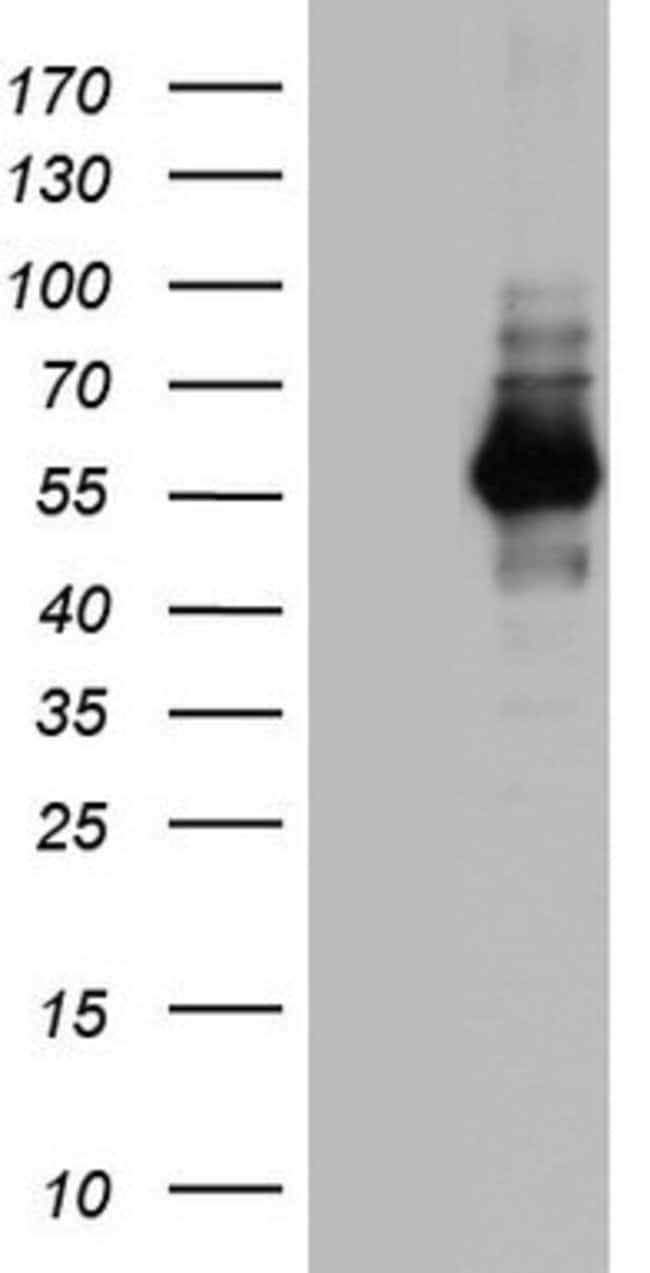 NAB1 Mouse anti-Human, Clone: OTI1H3, lyophilized, TrueMAB  100 µg;