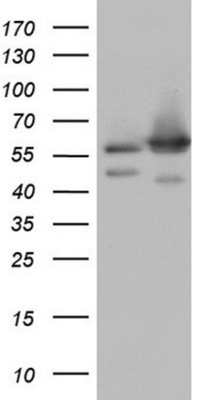 NAE1 Mouse anti-Human, Clone: OTI1E10, lyophilized, TrueMAB  100 µg;