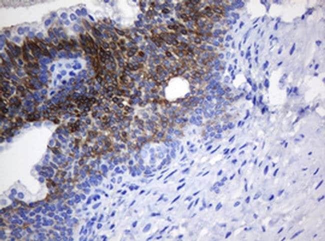 NANP Mouse anti-Human, Clone: OTI4F5, liquid, TrueMAB  100 µL; Unconjugated