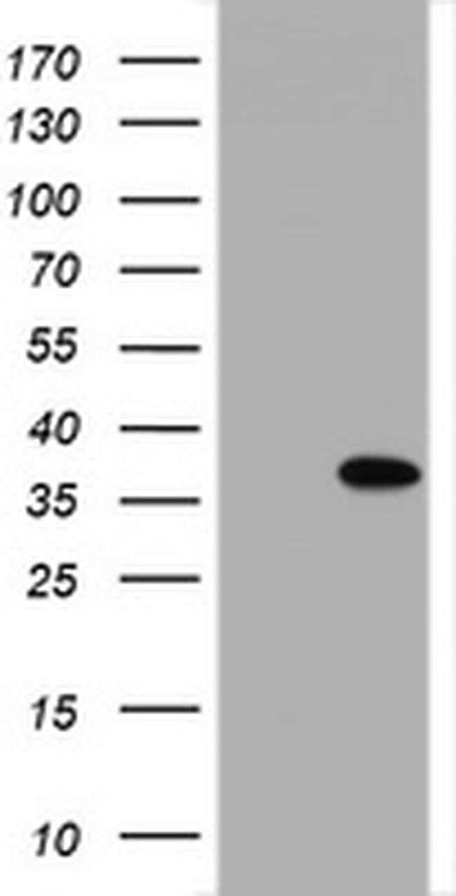 NANP Mouse anti-Human, Clone: OTI4D5, liquid, TrueMAB  100 µL; Unconjugated