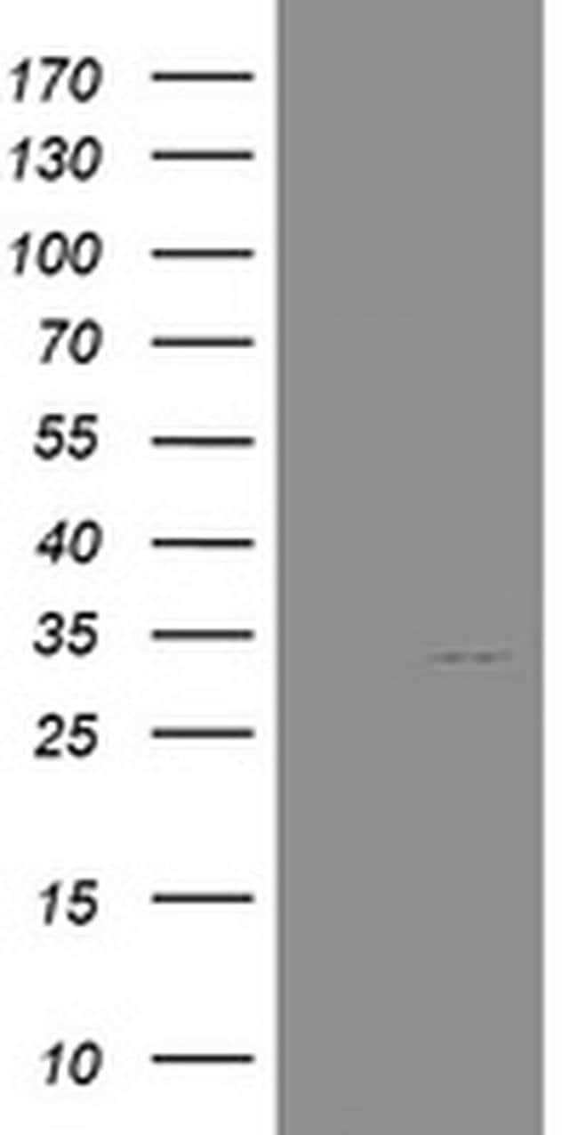 NANP Mouse anti-Human, Clone: OTI3C1, liquid, TrueMAB  100 µL; Unconjugated