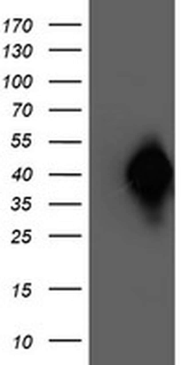 NAPEPLD Mouse anti-Human, Clone: OTI4B12, liquid, TrueMAB  100 µL;