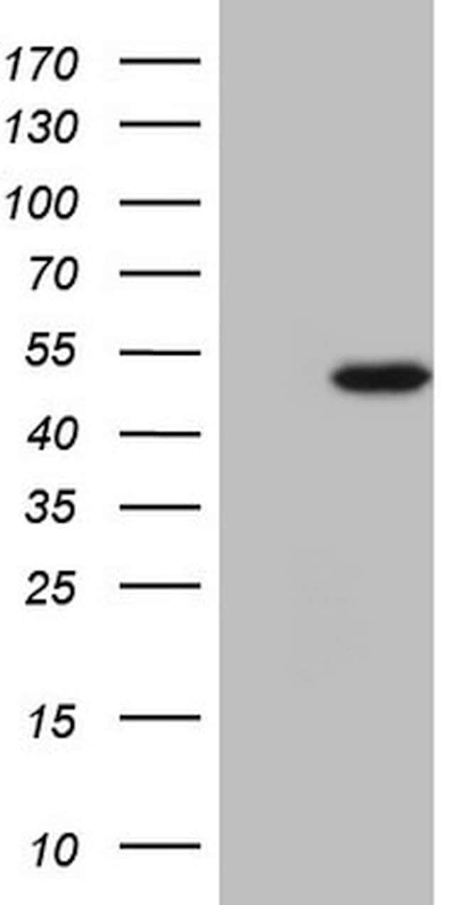 NARS2 Mouse anti-Human, Clone: OTI10H7, lyophilized, TrueMAB  100 µg;