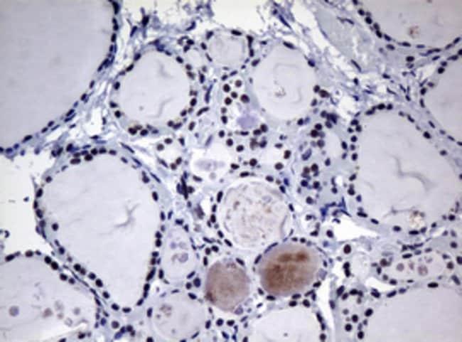 NBN Mouse anti-Human, Clone: OTI3C12, lyophilized, TrueMAB  100 µg;