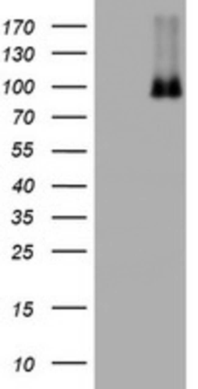 NBN Mouse anti-Human, Clone: OTI3A9, lyophilized, TrueMAB  100 µg;
