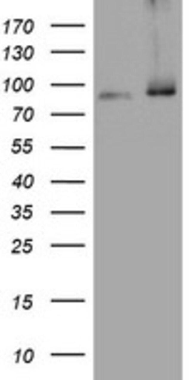 NBN Mouse anti-Human, Clone: OTI3G3, lyophilized, TrueMAB  100 µg;