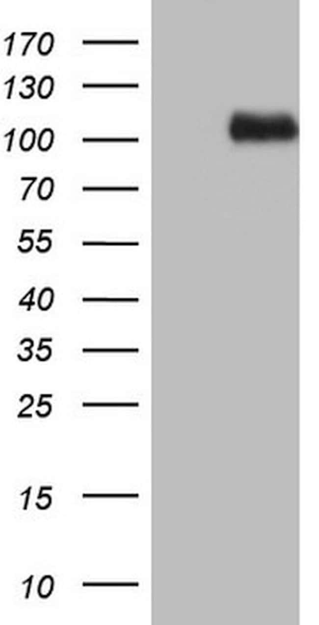 NCAM1 Mouse anti-Human, Clone: OTI2A2, lyophilized, TrueMAB  100 µg;