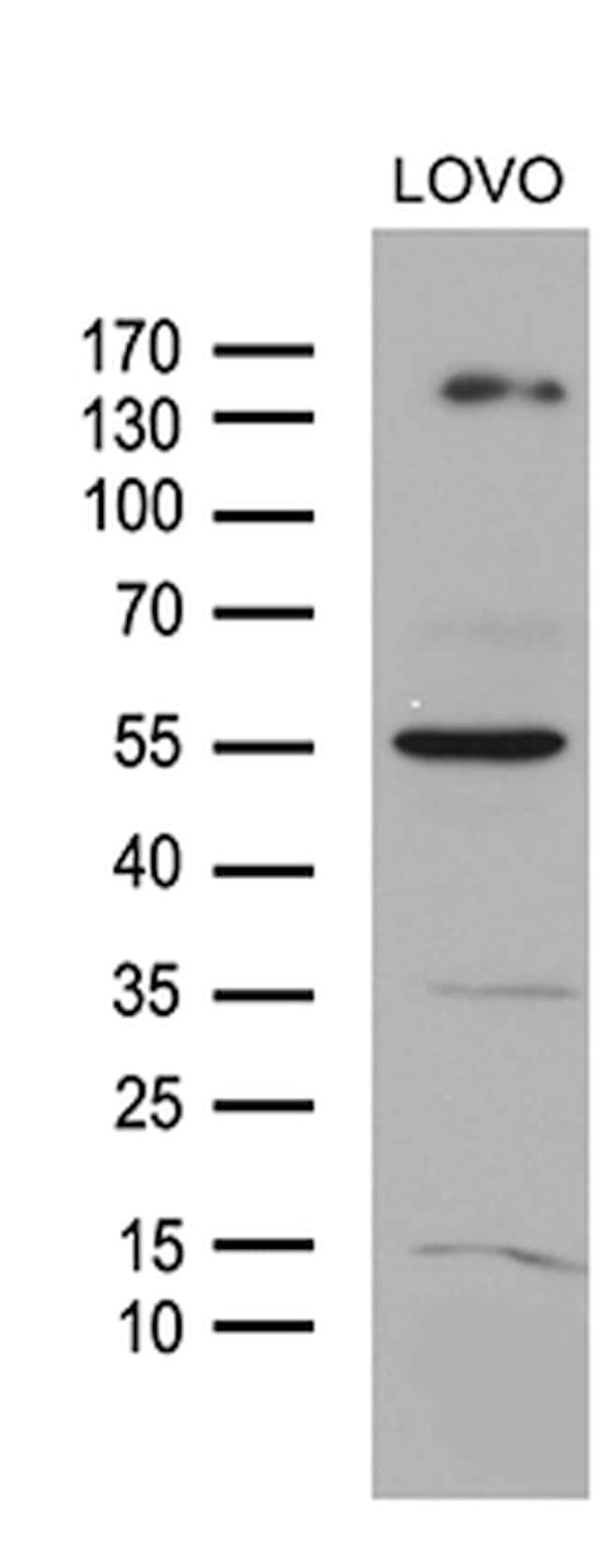 NCOA7 Mouse anti-Human, Clone: OTI2E12, lyophilized, TrueMAB  100 µg;