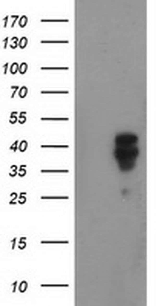 NDEL1 Mouse anti-Human, Clone: OTI4E5, liquid, TrueMAB  100 µL; Unconjugated