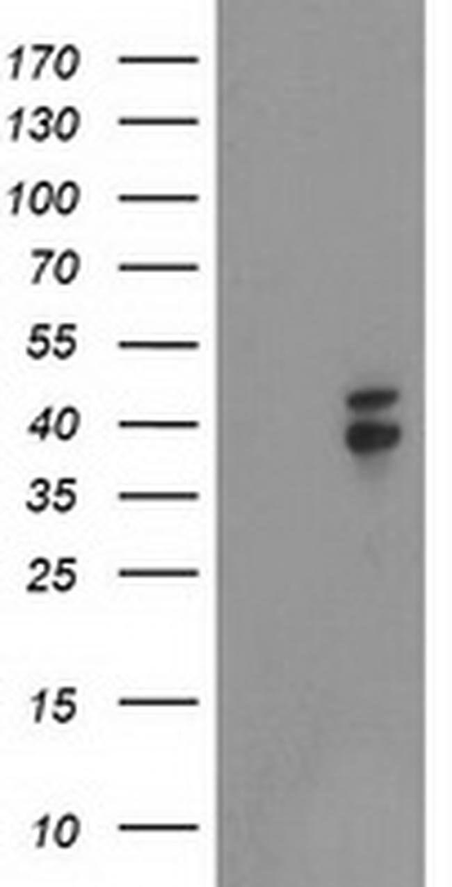 NDEL1 Mouse anti-Human, Mouse, Clone: OTI5E11, liquid, TrueMAB  100 µL;