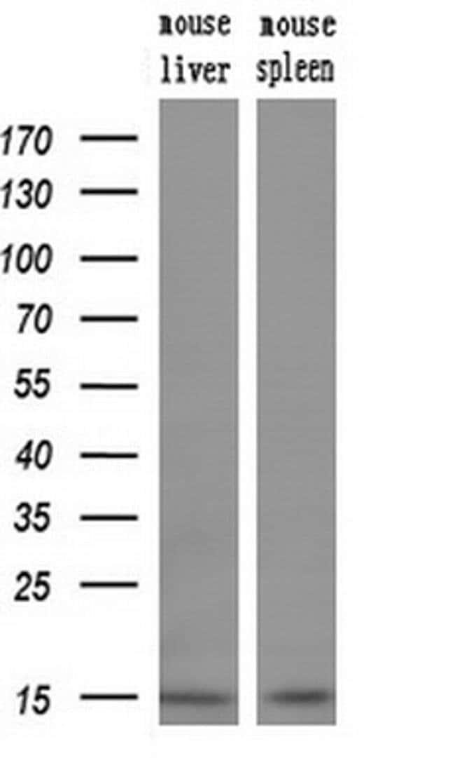 NDUFA5 Mouse anti-Human, Clone: OTI1E8, liquid, TrueMAB  100 µL; Unconjugated
