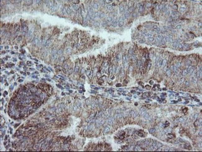 NDUFB10 Mouse anti-Human, Clone: OTI1H6, liquid, TrueMAB  100 µL;