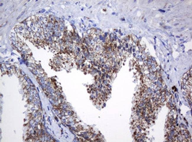 NDUFB10 Mouse anti-Human, Clone: OTI2G1, liquid, TrueMAB  100 µL;