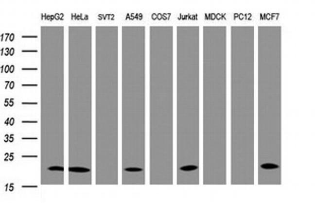 NDUFB10 Mouse anti-Human, Clone: OTI4D1, liquid, TrueMAB  100 µL;
