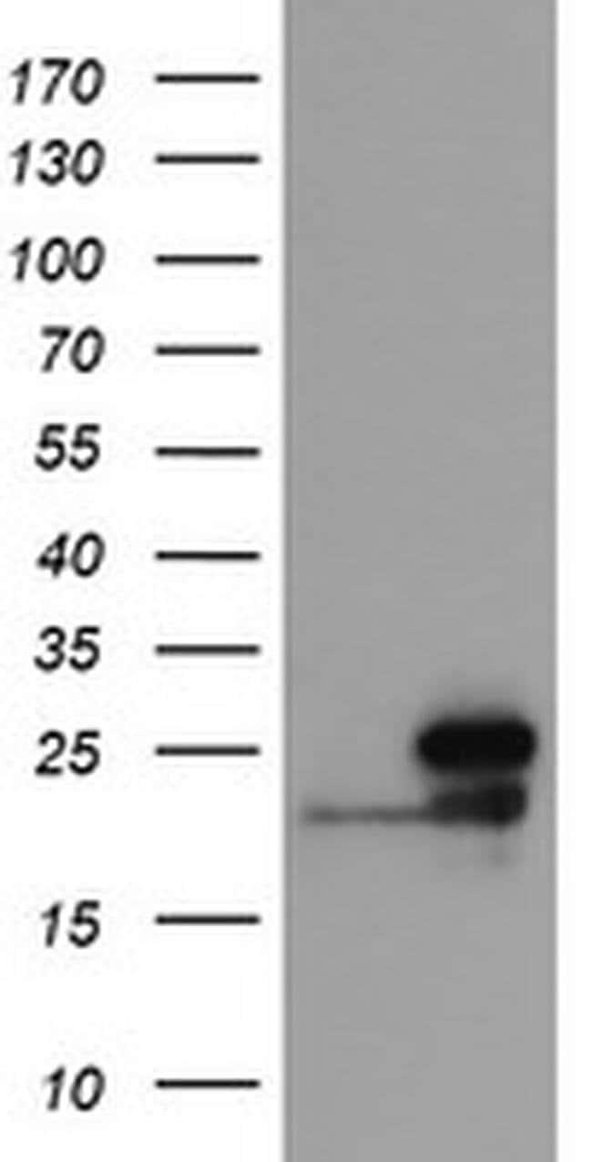 NDUFB10 Mouse anti-Human, Clone: OTI5C12, liquid, TrueMAB  100 µL;