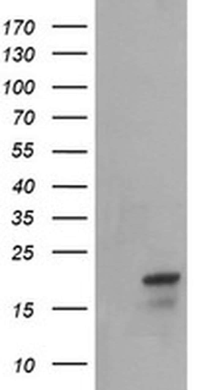 NDUFB10 Mouse anti-Canine, Human, Mouse, Rat, Clone: OTI4F1, liquid, TrueMAB
