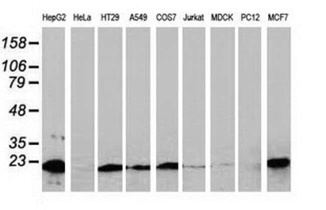 NDUFB9 Mouse anti-Human, Clone: OTI3E11, liquid, TrueMAB  100 µL;