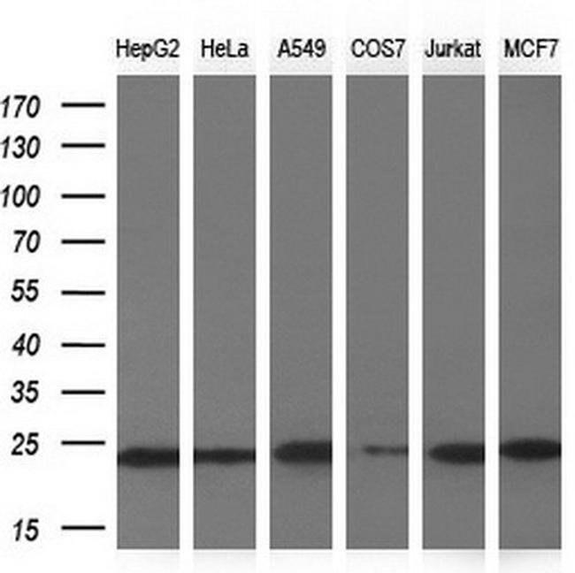 NDUFB9 Mouse anti-Human, Clone: OTI13H11, liquid, TrueMAB  100 µL;