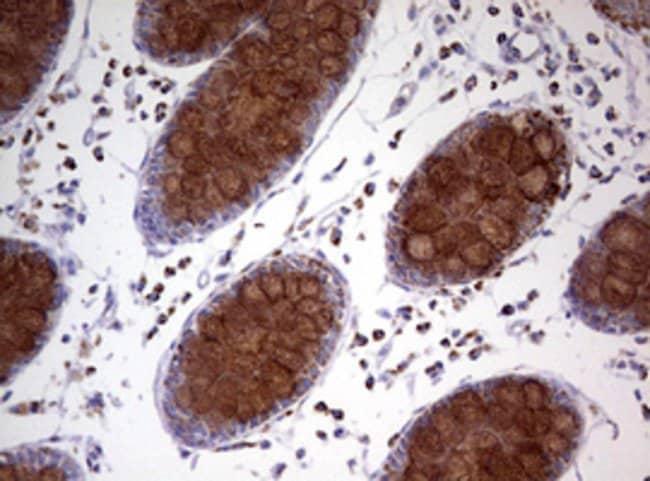 NDUFS2 Mouse anti-Human, Clone: OTI2G2, lyophilized, TrueMAB  100 µg;