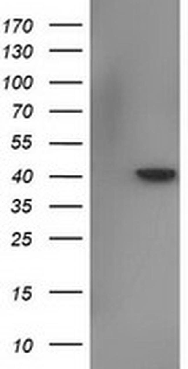 NECAB1 Mouse anti-Human, Clone: OTI1H5, liquid, TrueMAB  100 µL; Unconjugated
