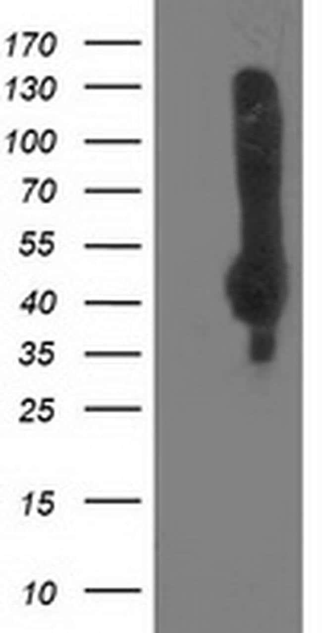 NEU2 Mouse anti-Human, Clone: OTI8C12, liquid, TrueMAB  100 µL; Unconjugated