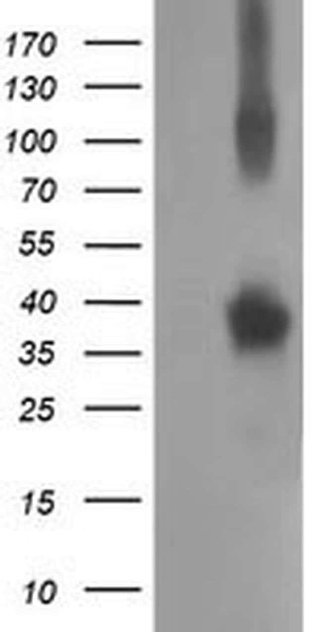 NHEJ1 Mouse anti-Human, Clone: OTI1F3, liquid, TrueMAB  100 µL; Unconjugated