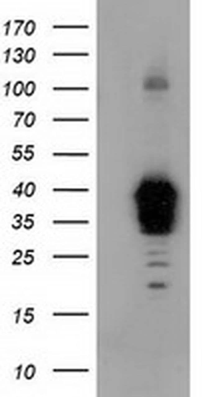 NHEJ1 Mouse anti-Human, Clone: OTI3E6, liquid, TrueMAB  100 µL; Unconjugated