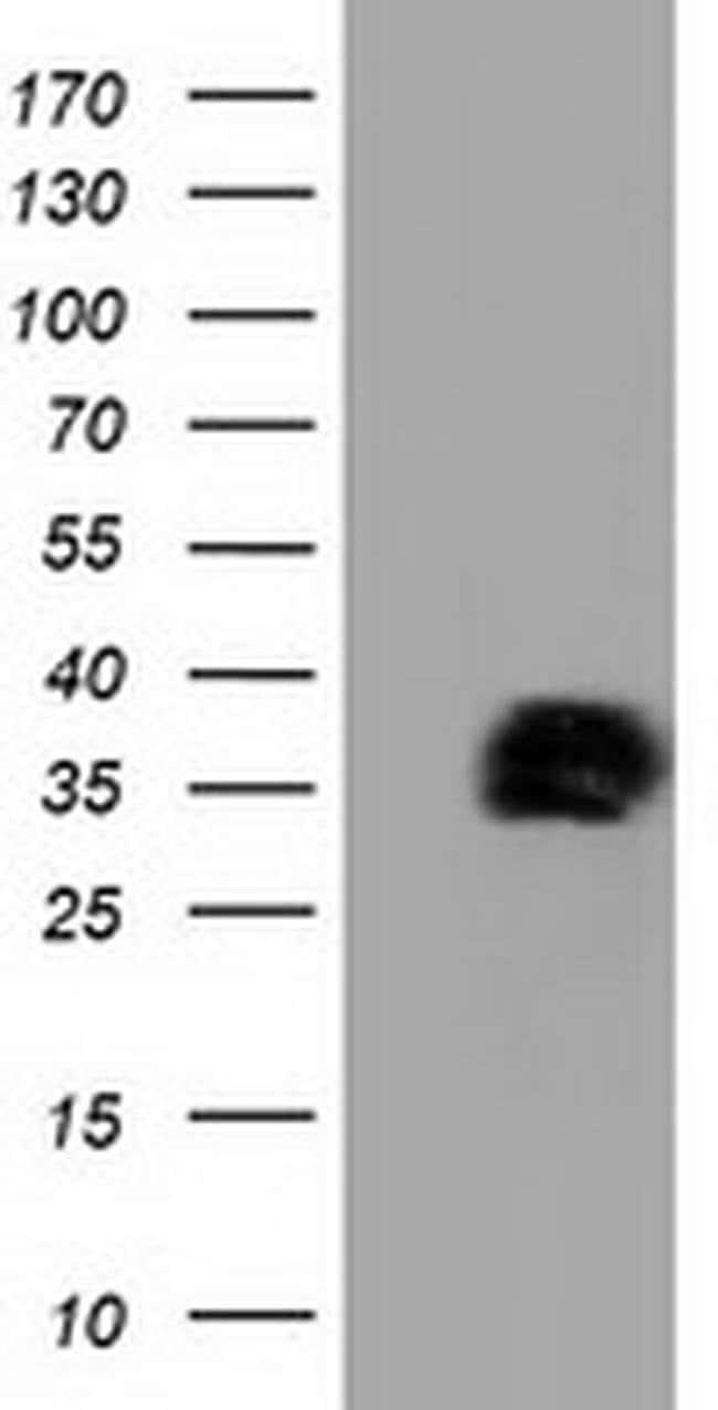 NHEJ1 Mouse anti-Human, Clone: OTI3E5, liquid, TrueMAB  100 µL; Unconjugated