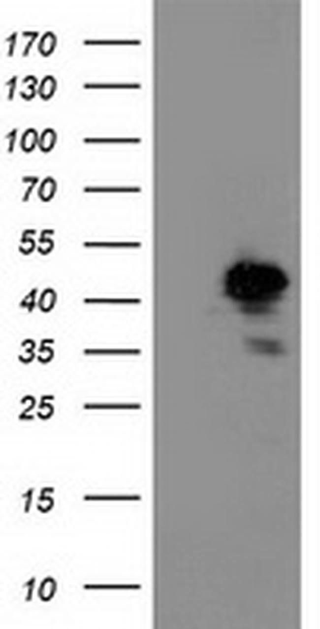 NIF3L1 Mouse anti-Human, Mouse, Clone: OTI2B7, liquid, TrueMAB  100 µL;
