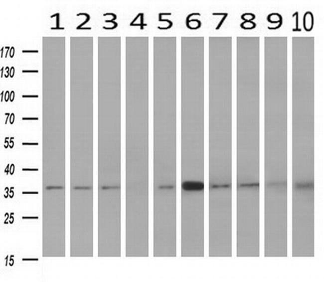 NIT1 Mouse anti-Human, Clone: OTI3A11, liquid, TrueMAB  100 µL; Unconjugated