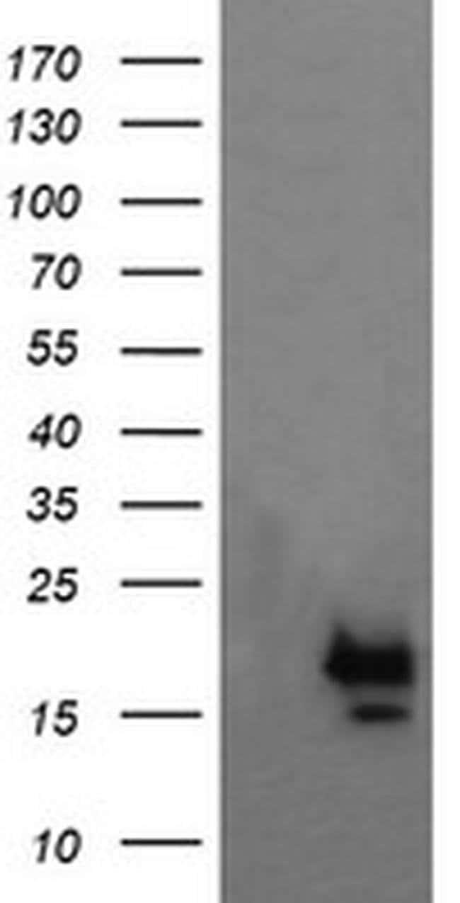 NKIRAS1 Mouse anti-Human, Clone: OTI1D2, liquid, TrueMAB  100 µL;