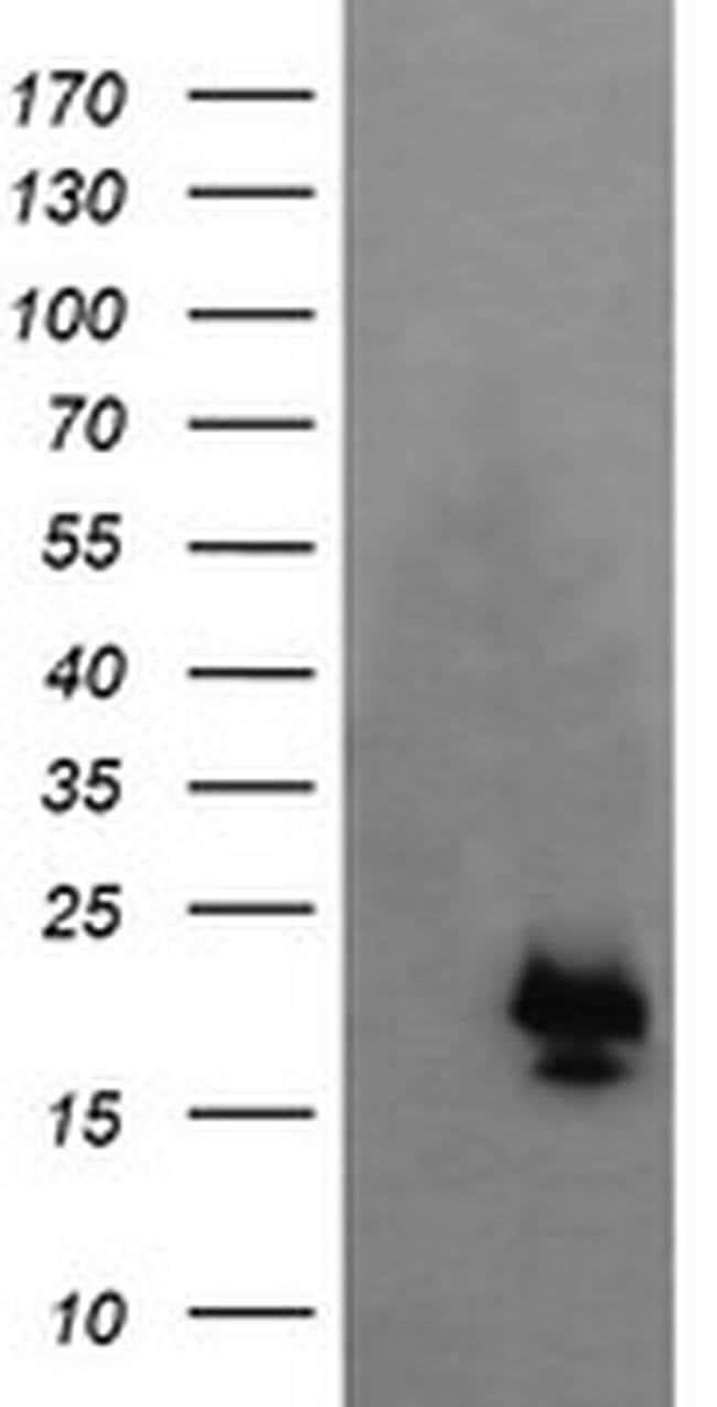 NKIRAS1 Mouse anti-Human, Clone: OTI6C11, liquid, TrueMAB  100 µL;