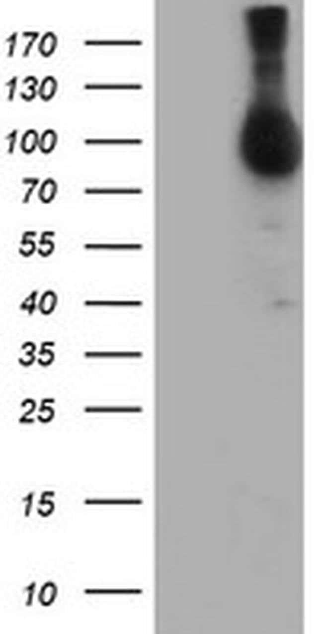 NLN Mouse anti-Human, Clone: OTI2F2, liquid, TrueMAB  100 µL; Unconjugated