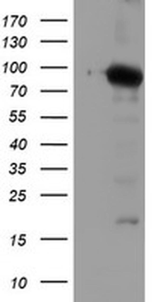 NLN Mouse anti-Human, Clone: OTI1B8, liquid, TrueMAB  100 µL; Unconjugated