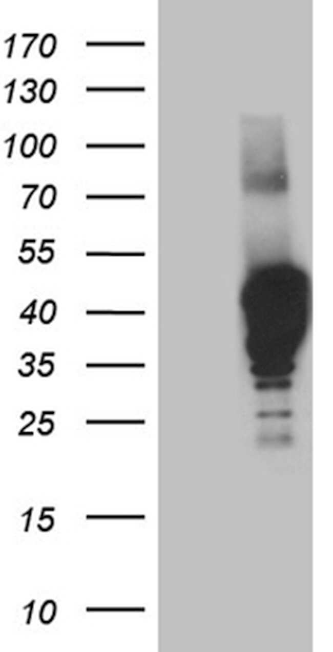 NMI Mouse anti-Human, Clone: OTI2C1, lyophilized, TrueMAB  100 µg;