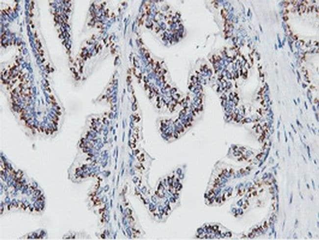 NMT2 Mouse anti-Human, Clone: OTI1G3, liquid, TrueMAB  100 µL; Unconjugated