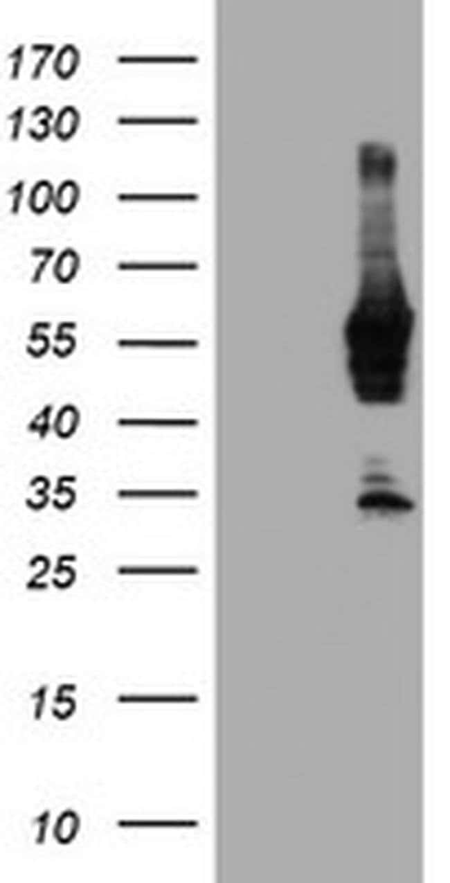 NMT2 Mouse anti-Human, Clone: OTI1B4, liquid, TrueMAB  100 µL; Unconjugated
