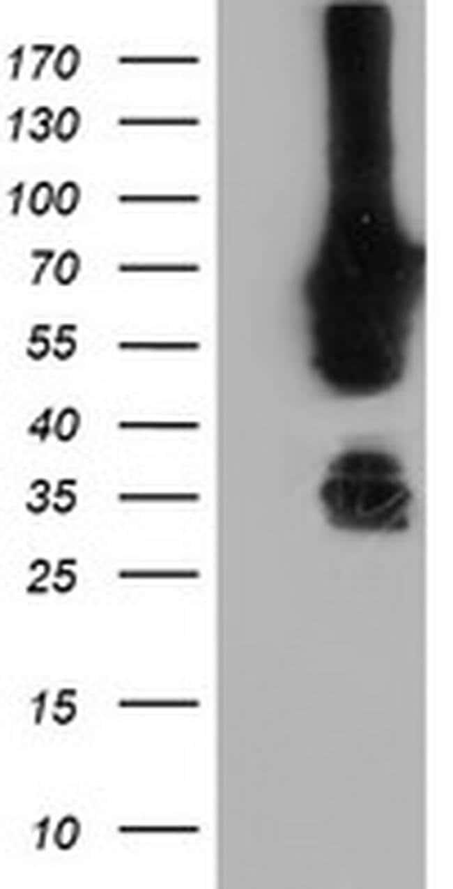 NMT2 Mouse anti-Human, Clone: OTI2E1, liquid, TrueMAB  100 µL; Unconjugated