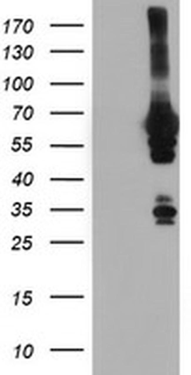 NMT2 Mouse anti-Human, Clone: OTI1B11, liquid, TrueMAB  100 µL; Unconjugated