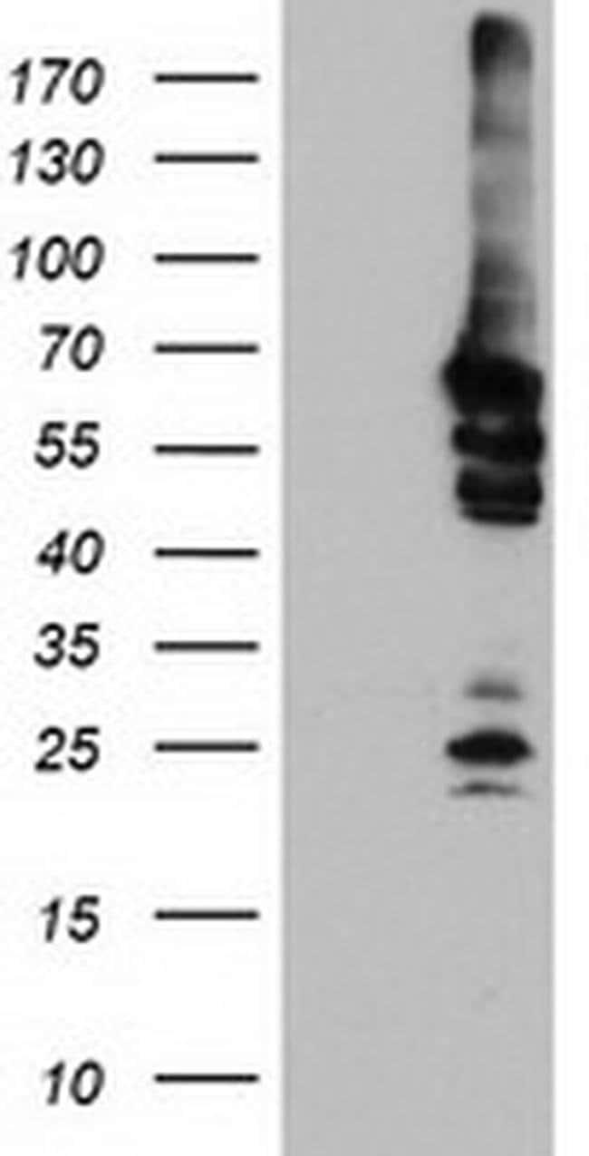 NMT2 Mouse anti-Human, Clone: OTI2B4, liquid, TrueMAB  100 µL; Unconjugated