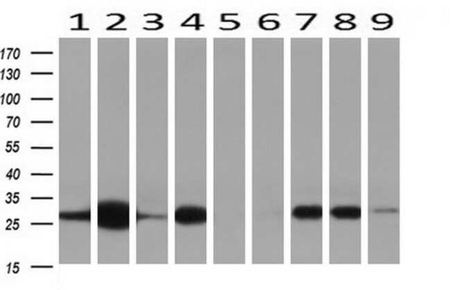 NNMT Mouse anti-Human, Clone: OTI2G8, liquid, TrueMAB  100 µL; Unconjugated