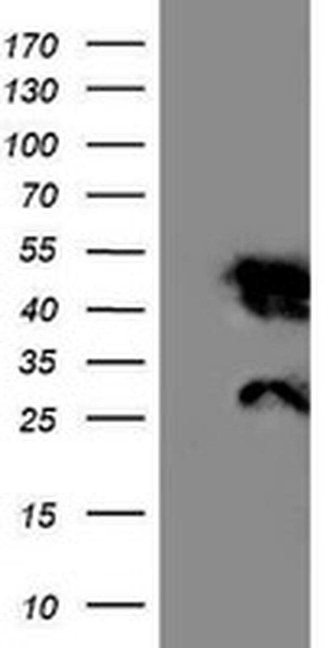 NNMT Mouse anti-Human, Mouse, Clone: OTI3D8, liquid, TrueMAB  100 µL;