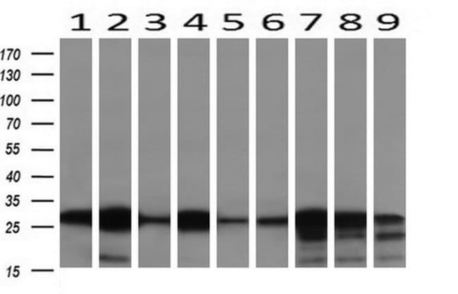 NNMT Mouse anti-Human, Mouse, Clone: OTI3D8, liquid, TrueMAB  30 µL;