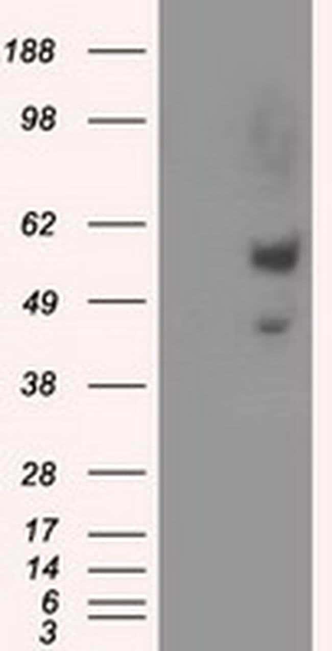 NPR3 Mouse anti-Human, Clone: OTI11B6, liquid, TrueMAB  100 µL; Unconjugated