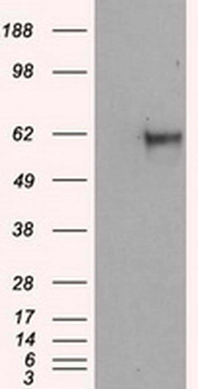 NPR3 Mouse anti-Human, Clone: OTI11B5, liquid, TrueMAB  100 µL; Unconjugated