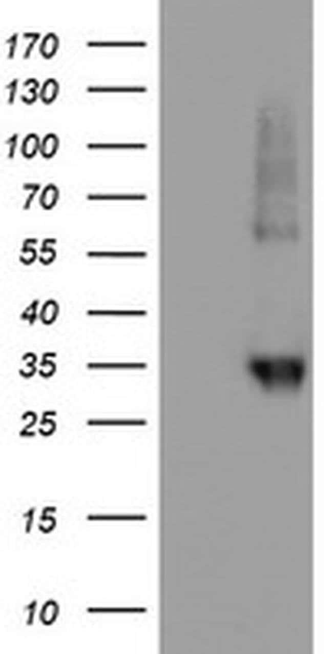 NPTN Mouse anti-Human, Clone: OTI2A6, liquid, TrueMAB  100 µL; Unconjugated
