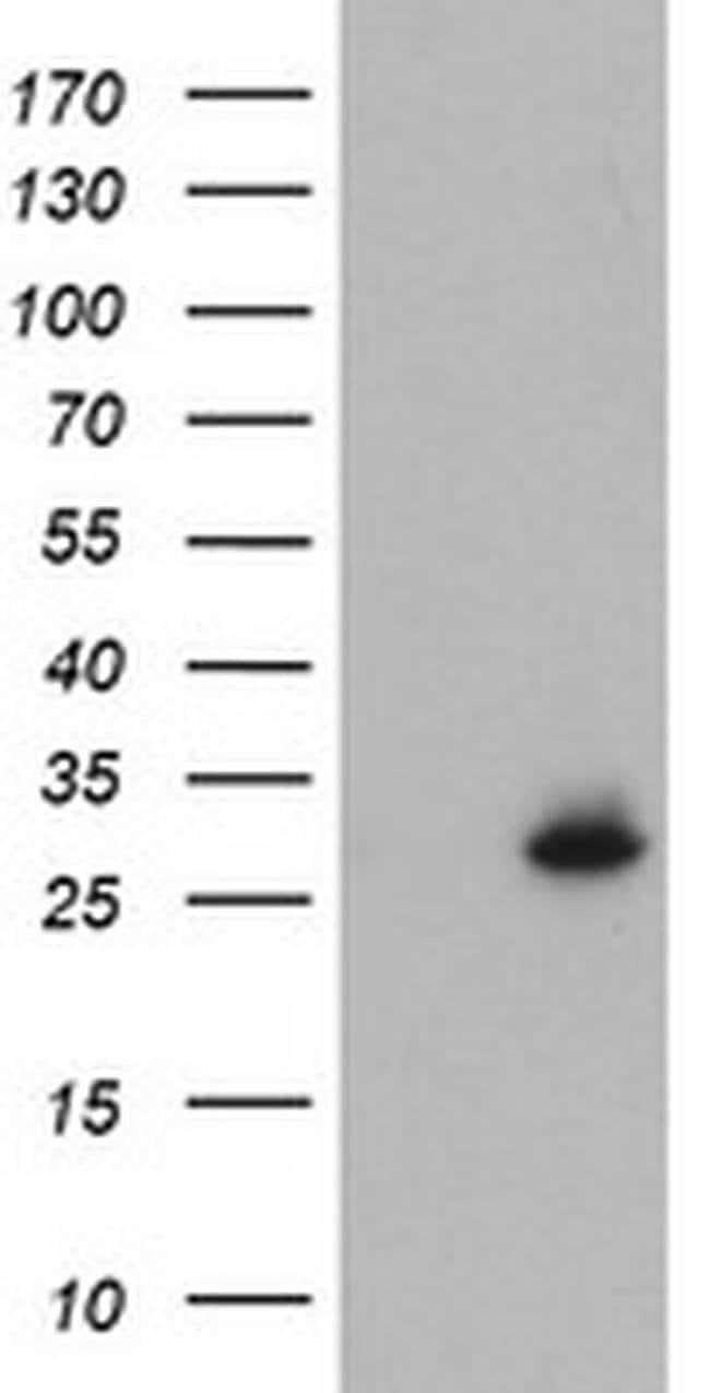 NQO2 Mouse anti-Human, Clone: OTI4B2, liquid, TrueMAB  100 µL; Unconjugated